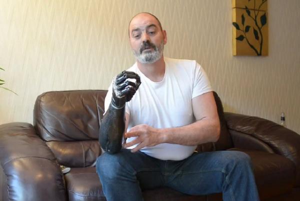 le bras bionique de la science fiction la r alit infos vivre fm la radio du handicap. Black Bedroom Furniture Sets. Home Design Ideas